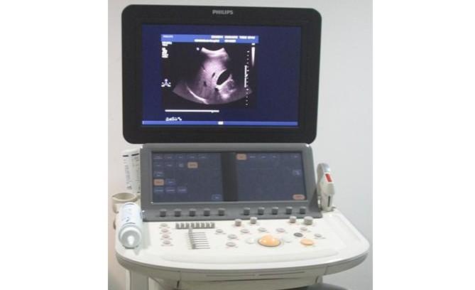 PHLILIPS IE –Elite是IE33的升级版,它是飞利浦超声家族中的高端旗舰产品,为原装进口的全数字化彩色多普勒超声诊断系统,广泛应用于腹部、心脏、妇产科、儿科、外周血管及小器官(浅表/深部)、介入超声等多临床领域,尤其在心脏、血管(颈部血管、上下肢血管)等疾病等的诊断和临床研究方面有着独特的诊断地位和优势,是一款融合多项最前沿技术的高端超声诊断仪器,我院是广东省内第一家引进这款高端彩超诊断设备,它的使用给患者的检查带来了更多的便利,给临床科室提供更多、更好、更全面的影像信息。