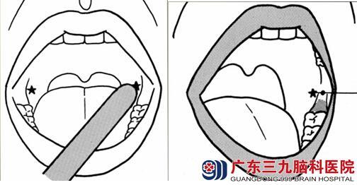 (图示)用手指或压舌板轻轻刺激K点,以促进张口及诱发吞咽反射-
