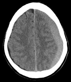 血腫 慢性 硬 膜 下